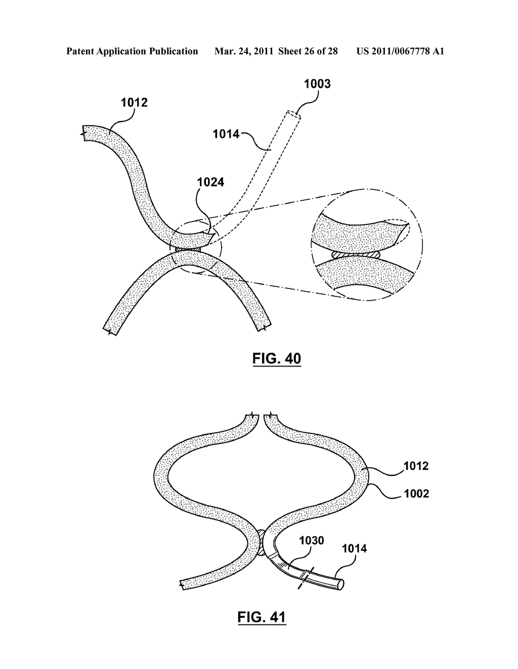 Apparatus and Methods for Loading a Drug Eluting Medical Device - diagram, schematic, and image 27