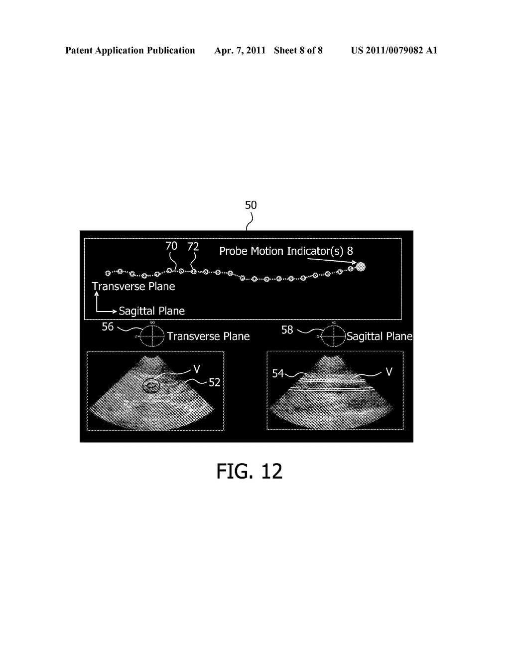 EXTENDED FIELD OF VIEW ULTRASONIC IMAGING WITH A TWO DIMENSIONAL ARRAY PROBE - diagram, schematic, and image 09