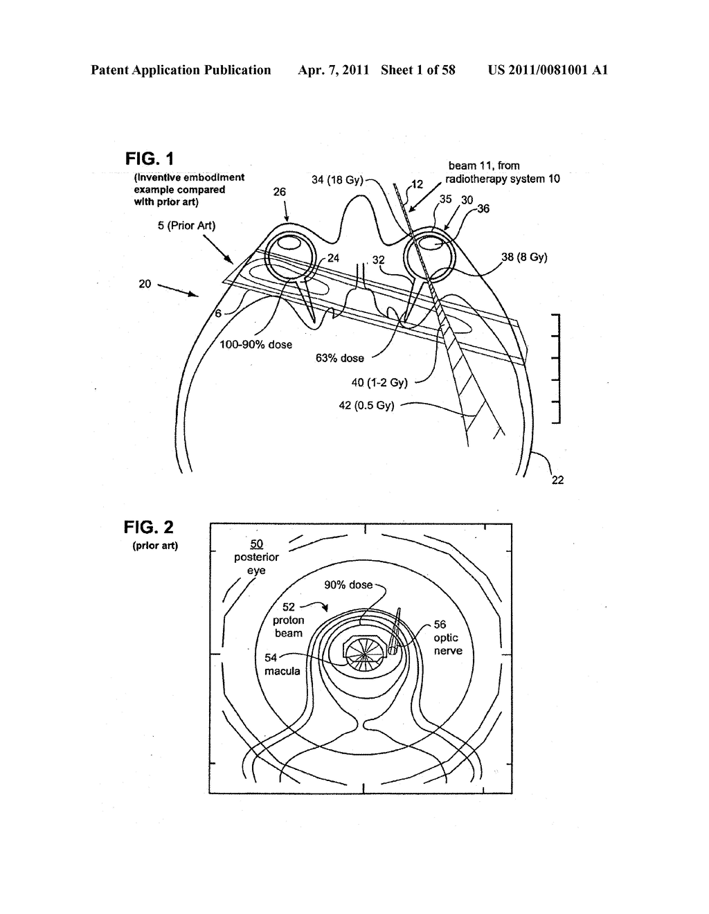 METHODS AND DEVICES FOR ORTHOVOLTAGE OCULAR RADIOTHERAPY AND TREATMENT PLANNING - diagram, schematic, and image 02