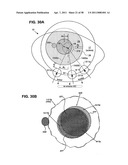 METHODS AND DEVICES FOR ORTHOVOLTAGE OCULAR RADIOTHERAPY AND TREATMENT PLANNING diagram and image