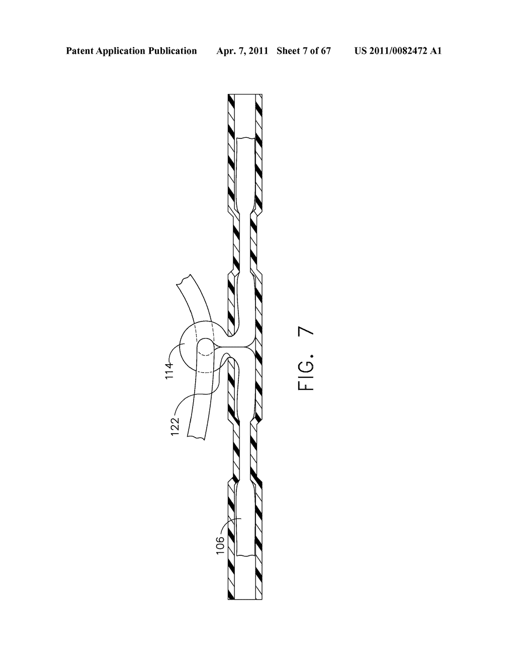 Method For Deploying Fasteners For Use In a Gastric Volume Reduction Procedure - diagram, schematic, and image 08