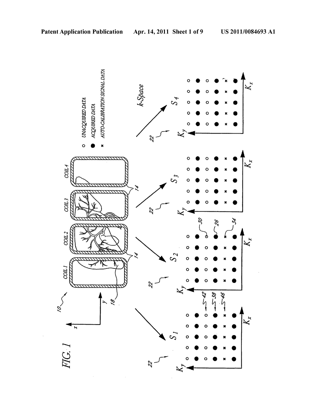 SYSTEMS AND METHODS FOR IMAGE RECONSTRUCTION OF SENSITIVITY ENCODED MRI DATA - diagram, schematic, and image 02