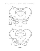 Patient-Specific Hip Joint Devices diagram and image