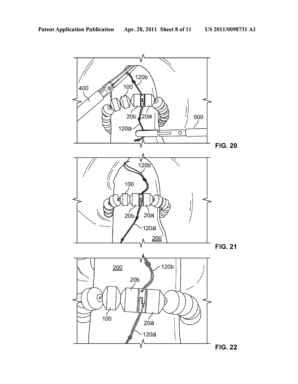 MAGNETICALLY ASSISTED CLASPS FOR PROSTHETIC IMPLANTS, AND RELATED METHODS - diagram, schematic, and image 09