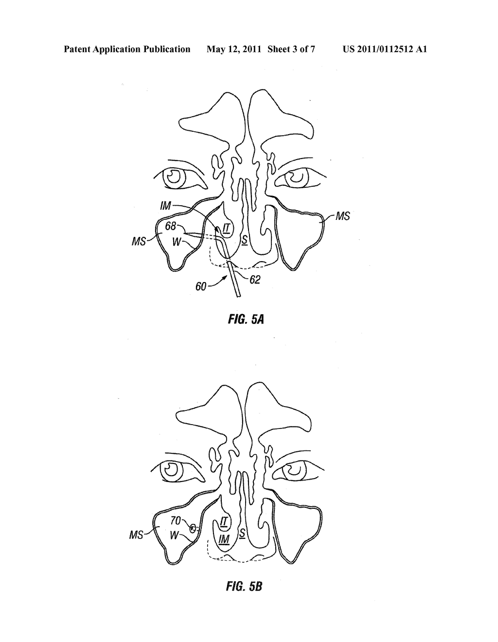 DEVICES AND METHODS FOR TREATING MAXILLARY SINUS DISEASE - diagram, schematic, and image 04