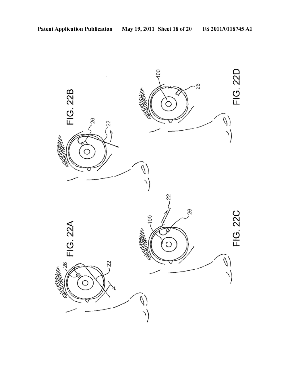 METHODS, SYSTEMS AND APPARATUS FOR RELIEVING PRESSURE IN AN ORGAN - diagram, schematic, and image 19