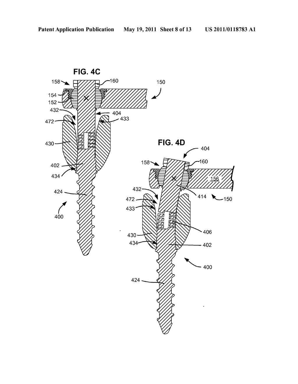 LOAD-SHARING BONE ANCHOR HAVING A FLEXIBLE POST AND METHOD FOR DYNAMIC STABILIZATION OF THE SPINE - diagram, schematic, and image 09