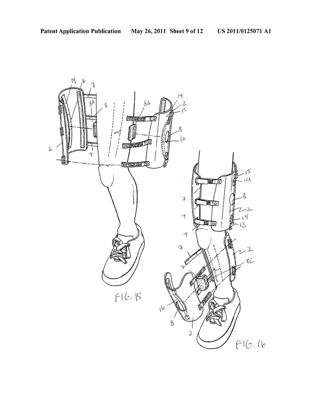 ORTHOPAEDIC DEVICE AND METHOD OF USE FOR TREATING BONE FRACTURES - diagram, schematic, and image 10