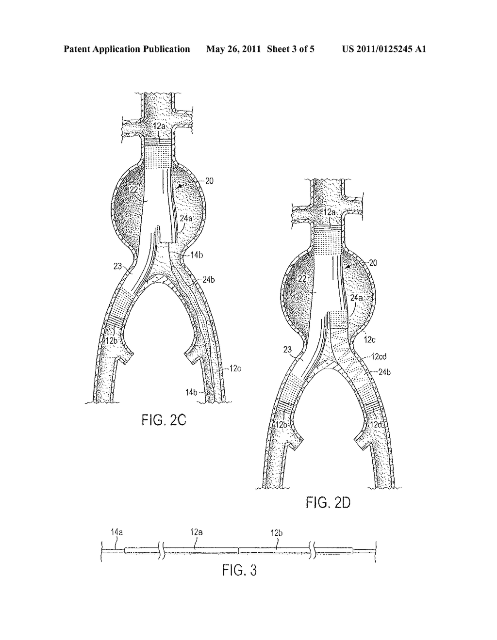 HYPOTUBE ENDOLUMINAL DEVICE AND METHOD - diagram, schematic, and image 04