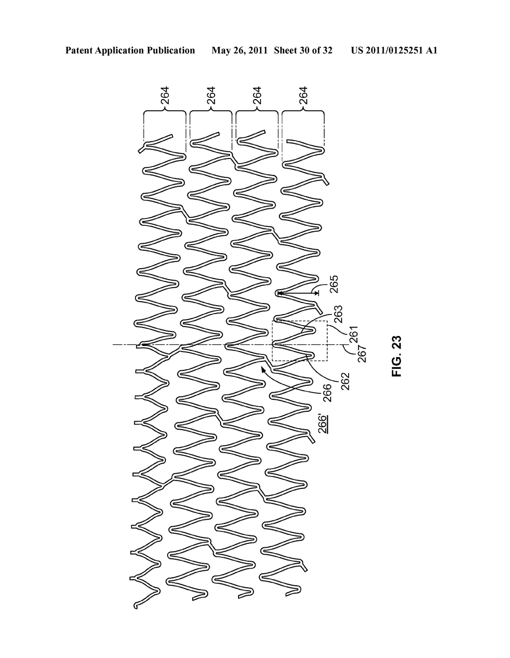 Self-Expanding Stent with Polygon Transition Zone - diagram, schematic, and image 31