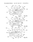 DENTAL RESTORATION CONDITIONING APPARATUS AND METHOD diagram and image