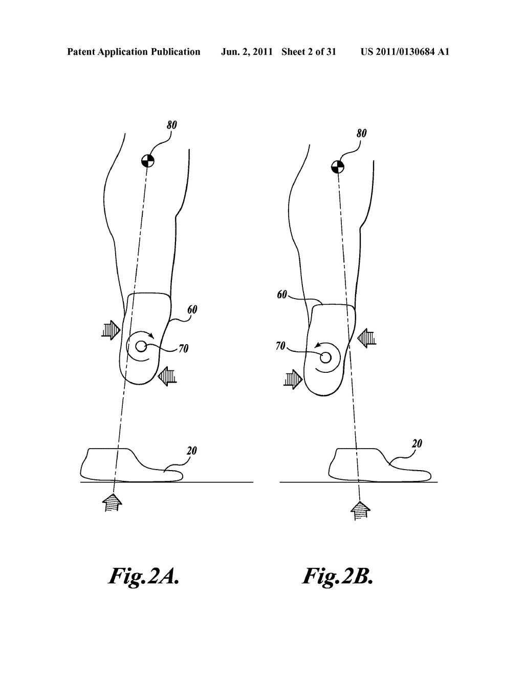 LOWER-LIMB PROSTHESIS FORCE AND MOMENT TRANSDUCER - diagram, schematic, and image 03