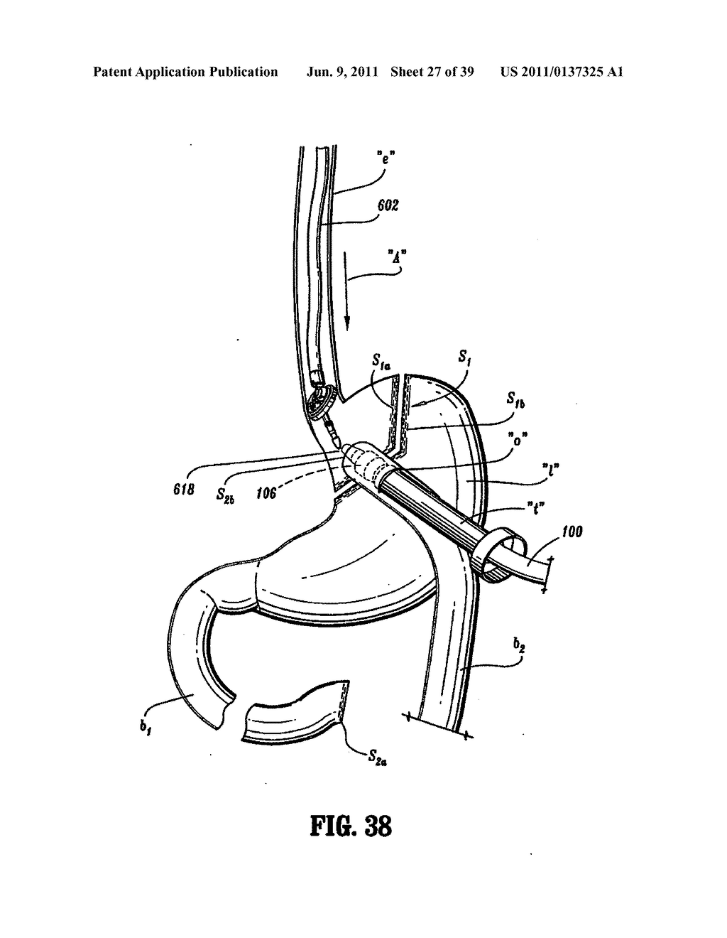 Apparatus And Method For Performing A Bypass Procedure In A