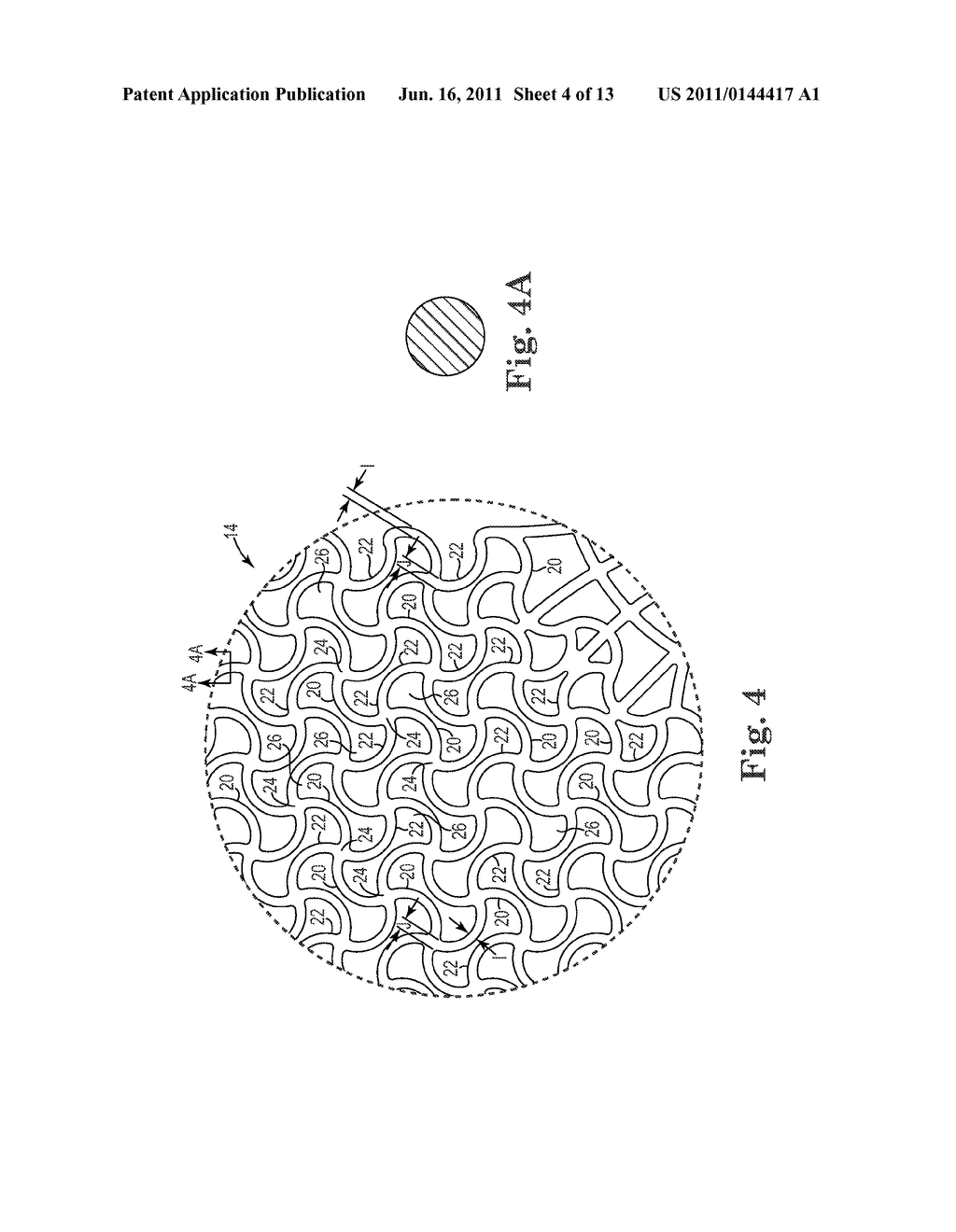 Patterned Implant and Method - diagram, schematic, and image 05
