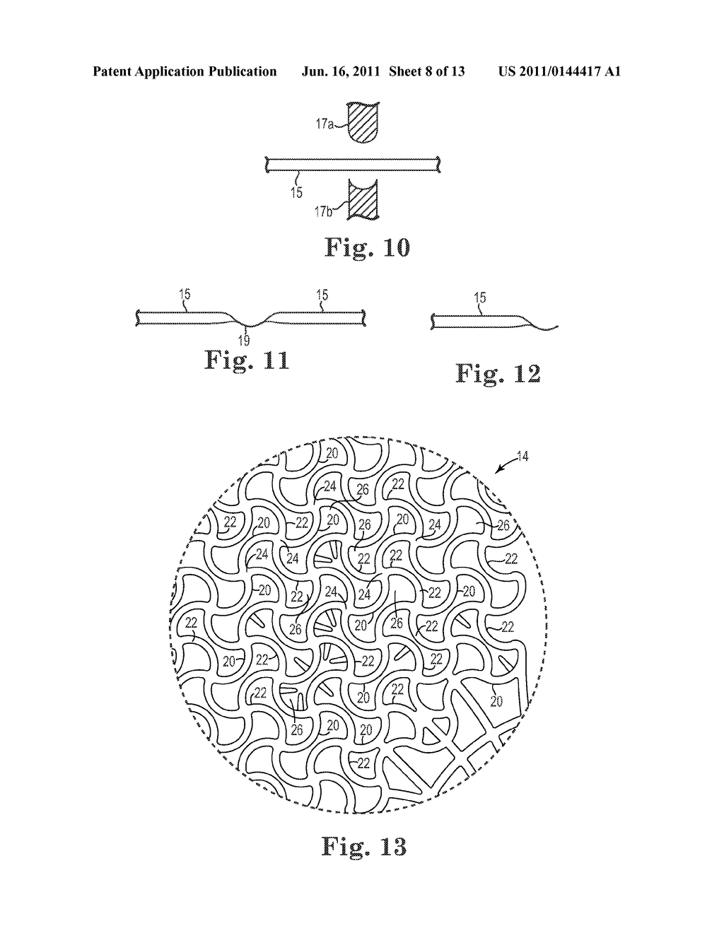 Patterned Implant and Method - diagram, schematic, and image 09
