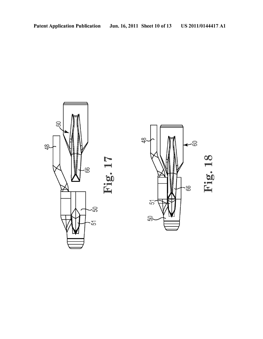 Patterned Implant and Method - diagram, schematic, and image 11