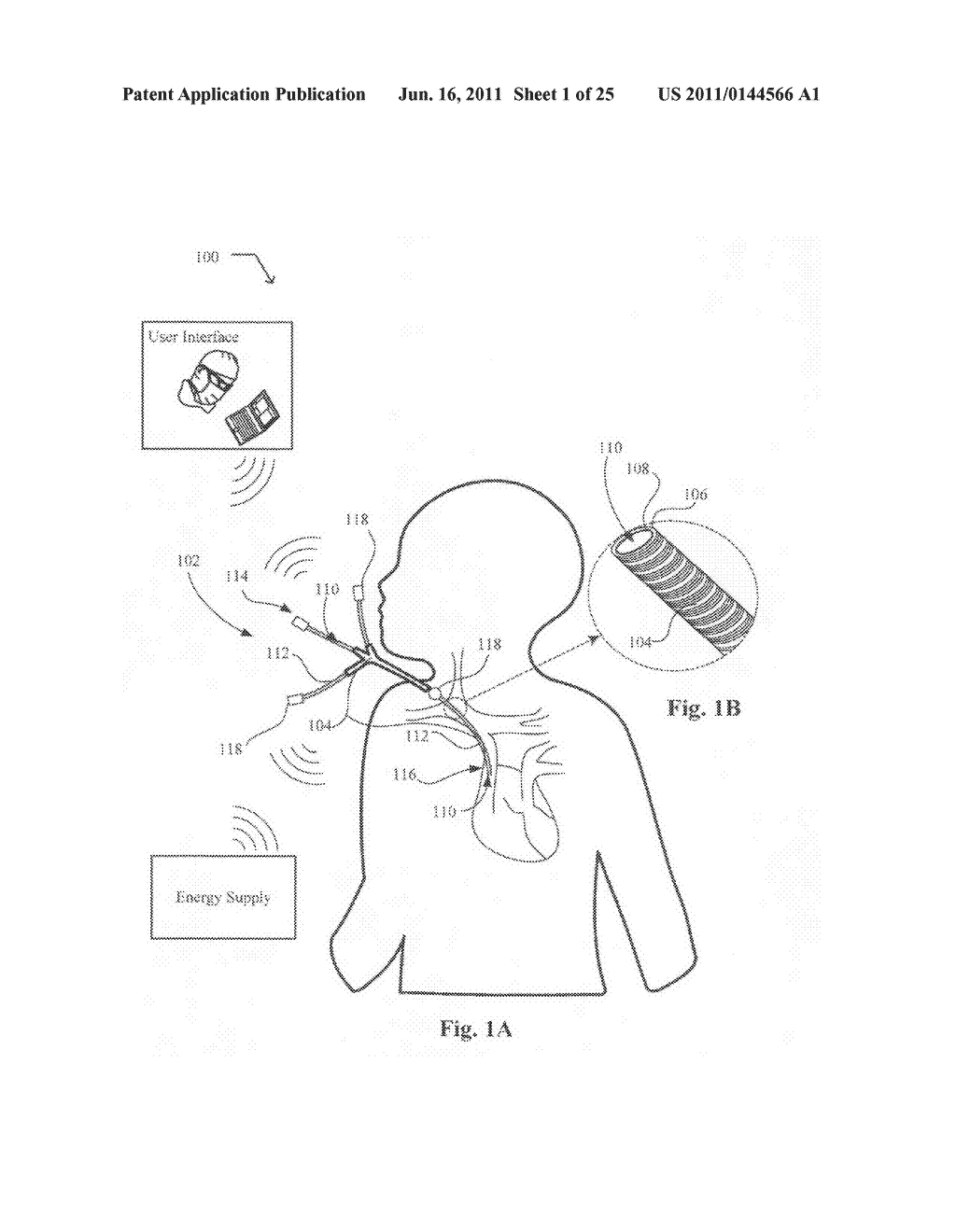 Systems, devices, and methods including catheters having an actively     controllable therapeutic agent delivery component - diagram, schematic, and image 03
