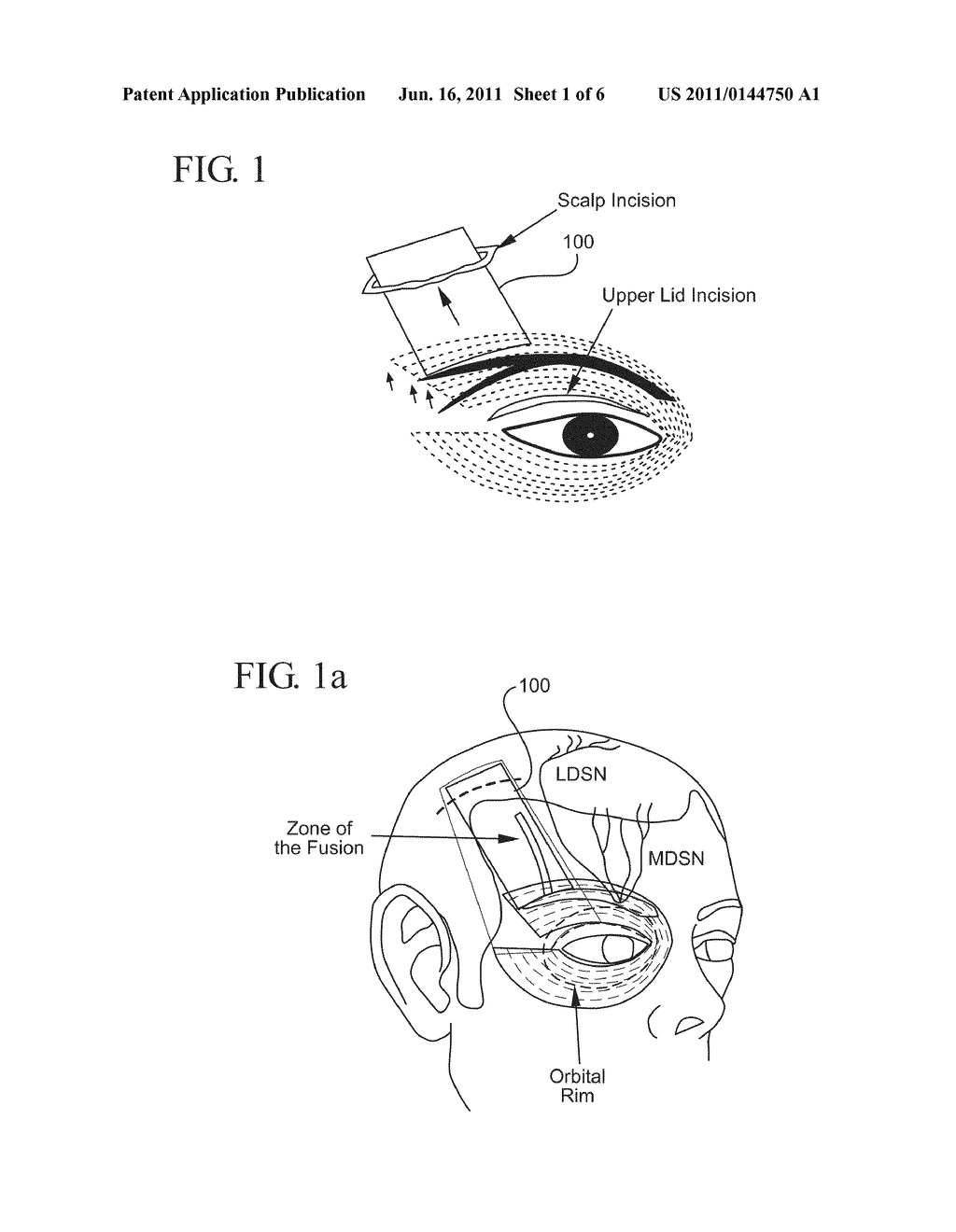 brow lift implant and method diagram, schematic, and image 02 correct eyebrow shape eyebrow lift diagram #6