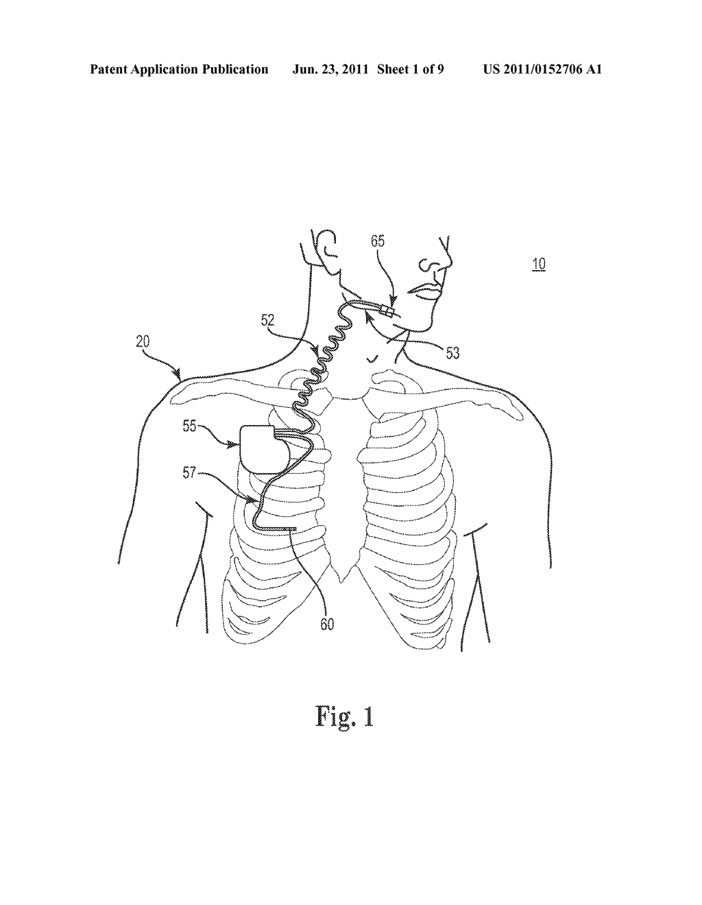 METHOD AND APPARATUS FOR SENSING RESPIRATORY PRESSURE IN AN IMPLANTABLE     STIMULATION SYSTEM - diagram, schematic, and image 02