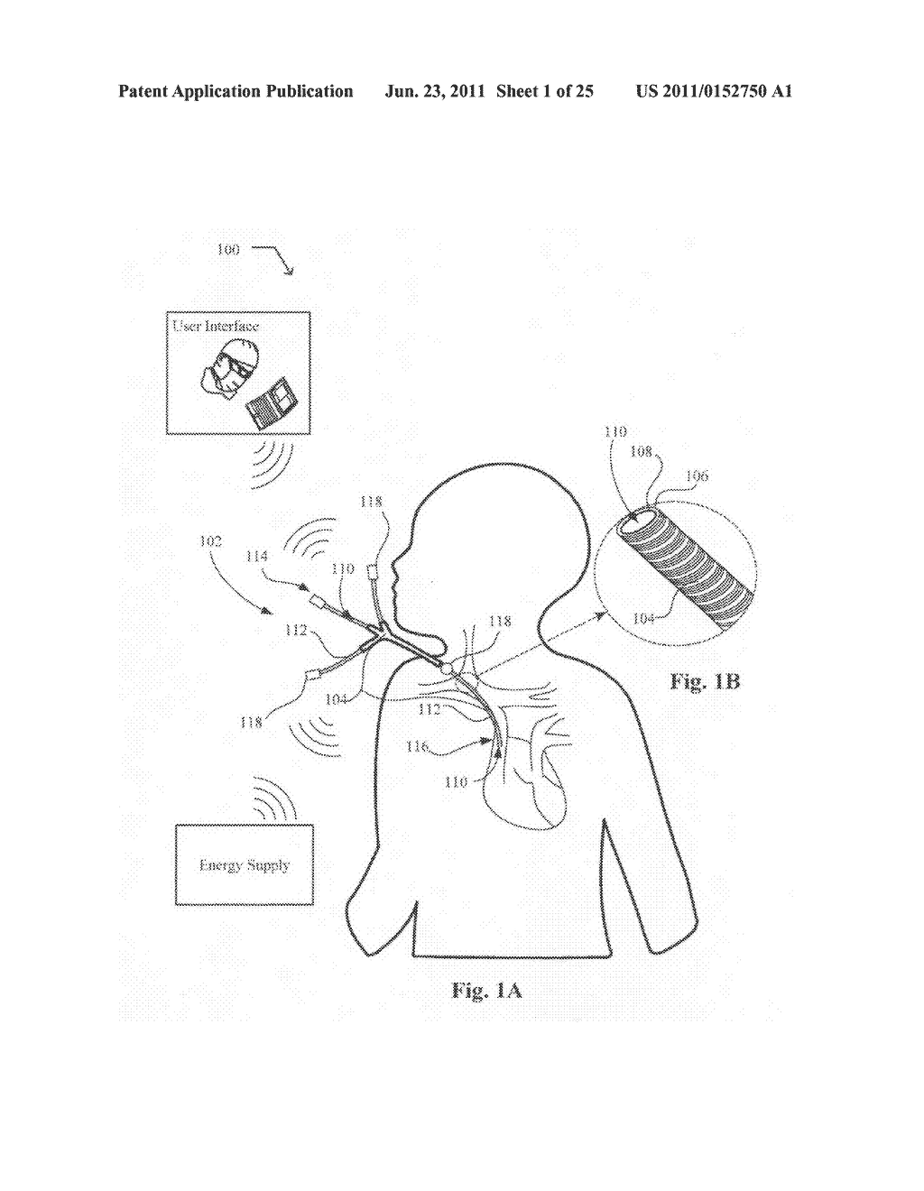 Systems devices, and methods including catheters configured to monitor and     inhibit biofilm formation - diagram, schematic, and image 02