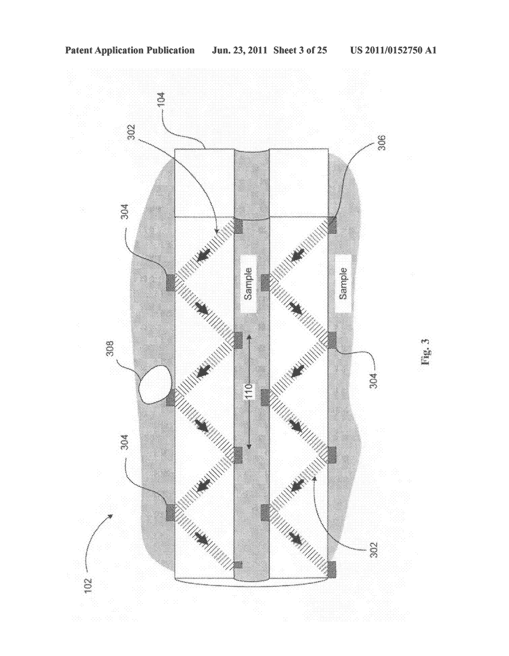 Systems devices, and methods including catheters configured to monitor and     inhibit biofilm formation - diagram, schematic, and image 04