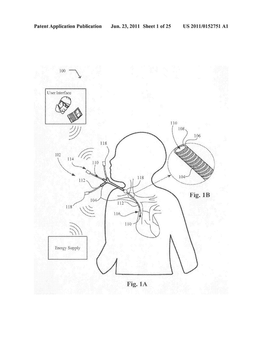 Systems, devices, and methods including catheters having UV-Energy     emitting coatings - diagram, schematic, and image 02