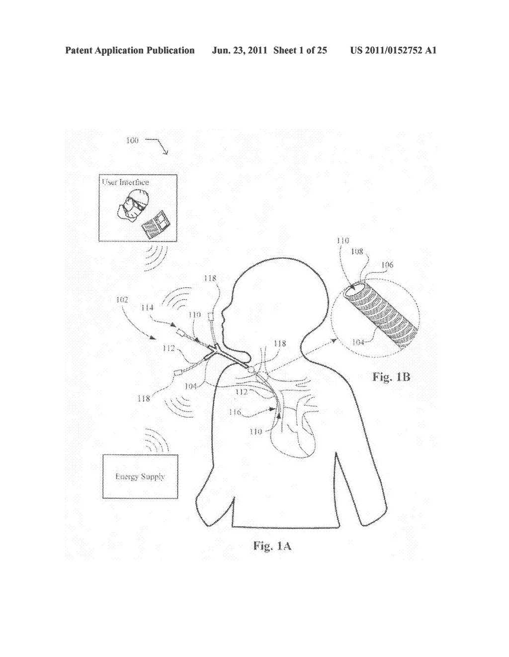 Systems, devices, and methods including catheters having components that     are actively controllable between transmissive and reflective states - diagram, schematic, and image 02