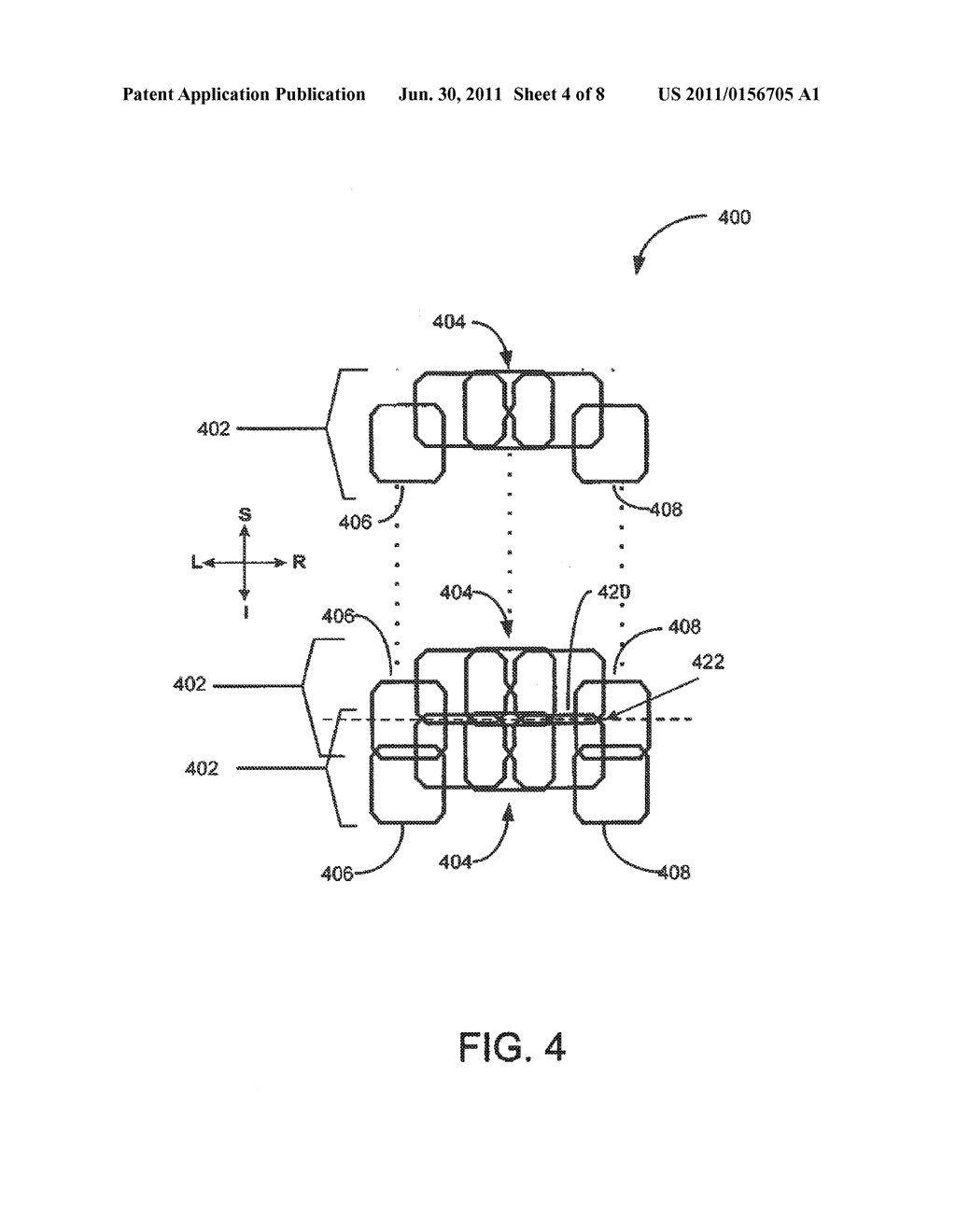 Quadrature And Linear Rf Coil Array For Mri Of Human Spine And Torso