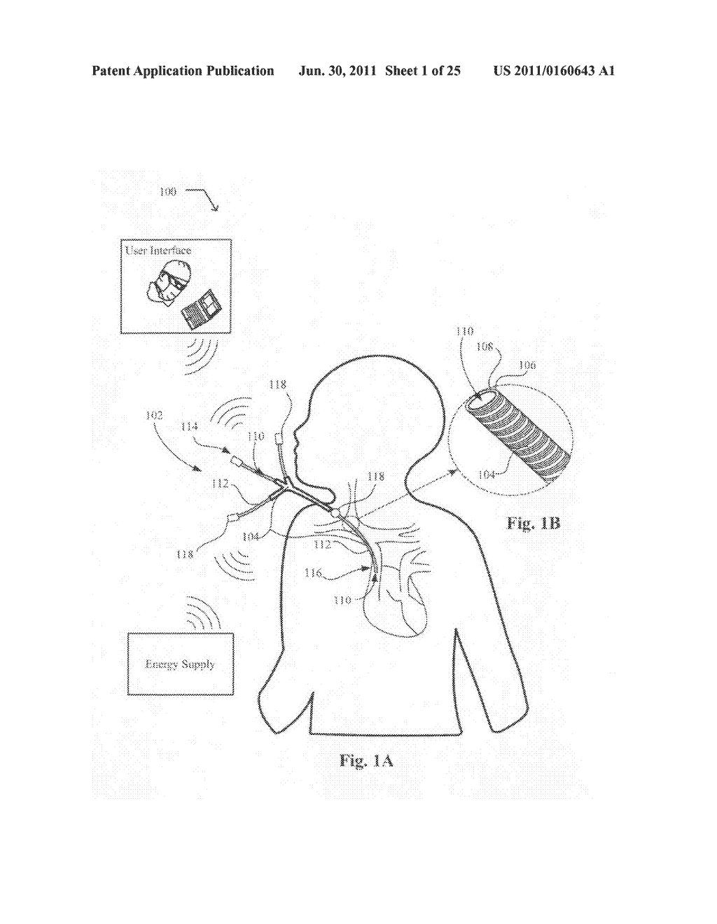 Systems, devices, and methods including catheters having acoustically     actuatable waveguide components for delivering a sterilizing stimulus to     a region proximate a surface of the catheter - diagram, schematic, and image 02