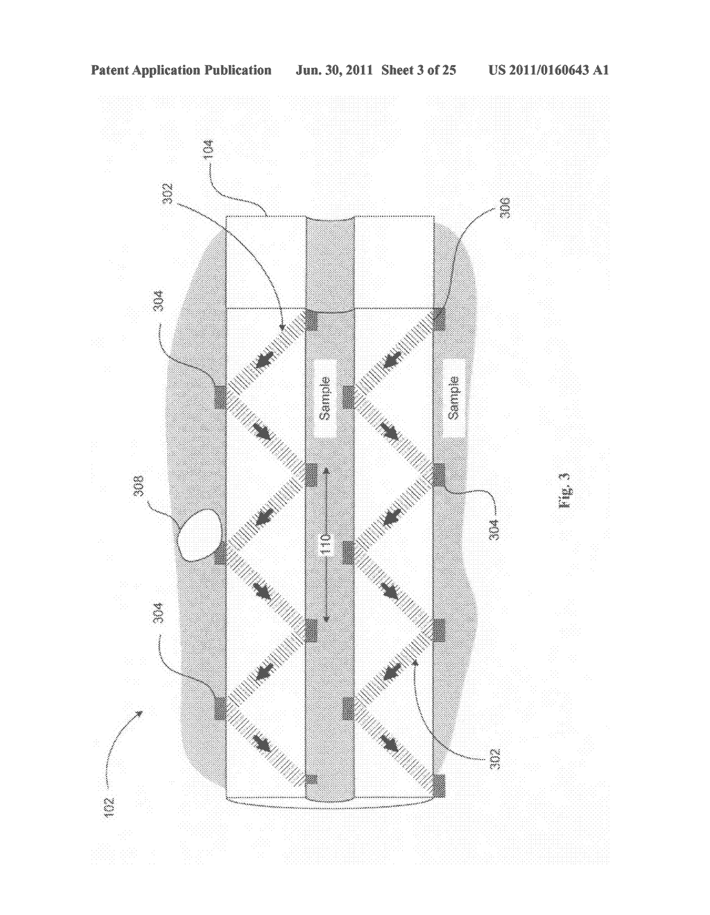 Systems, devices, and methods including catheters having acoustically     actuatable waveguide components for delivering a sterilizing stimulus to     a region proximate a surface of the catheter - diagram, schematic, and image 04