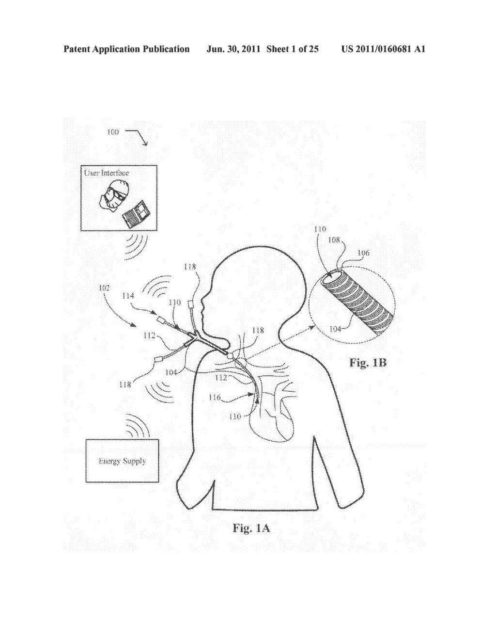 Systems, devices, and methods including catheters having light removable     coatings based on a sensed condition - diagram, schematic, and image 02