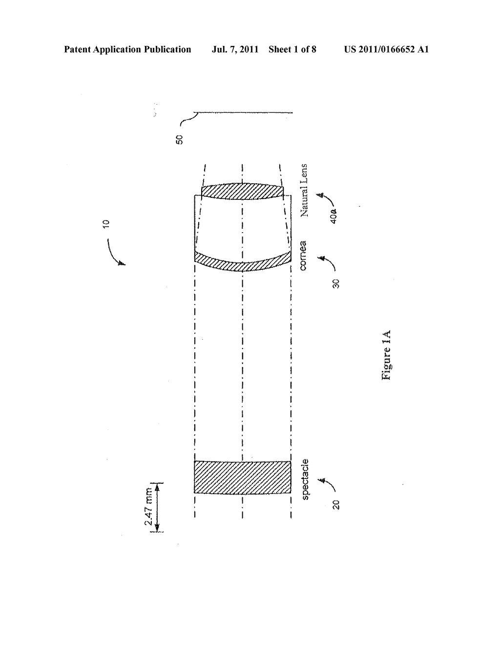 TORIC LENS WITH DECREASED SENSITIVITY TO CYLINDER POWER AND ROTATION AND     METHOD OF USING THE SAME - diagram, schematic, and image 02