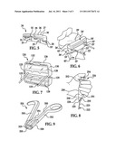 INSTRUMENT WITH TRANSPARENT PORTION FOR USE WITH PATIENT-SPECIFIC     ALIGNMENT GUIDE diagram and image