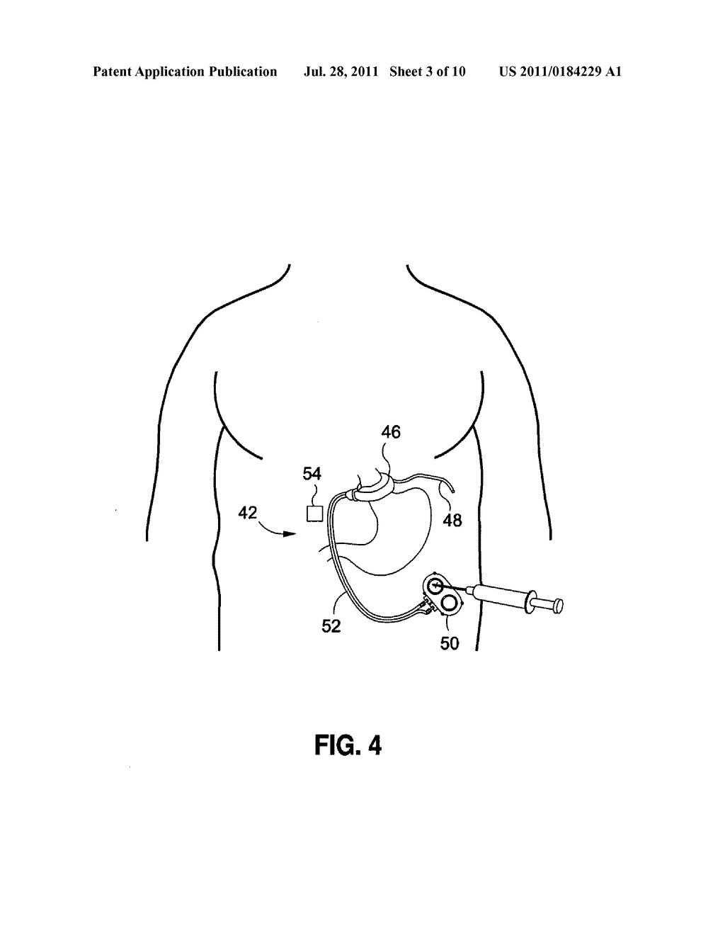 LAPAROSCOPIC GASTRIC BAND WITH ACTIVE AGENTS - diagram, schematic, and image 04