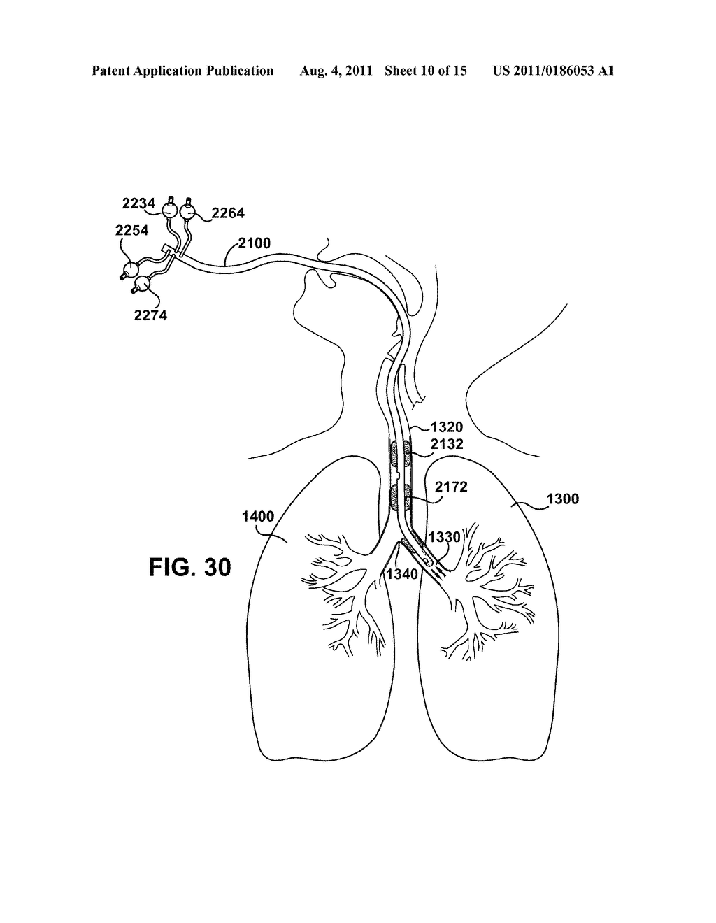 Medical Tubes For Selective Mechanical Ventilation Of The Lungs