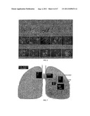 Circulating Tumor and Tumor Stem Cell Detection Using Genomic Specific     Probes diagram and image