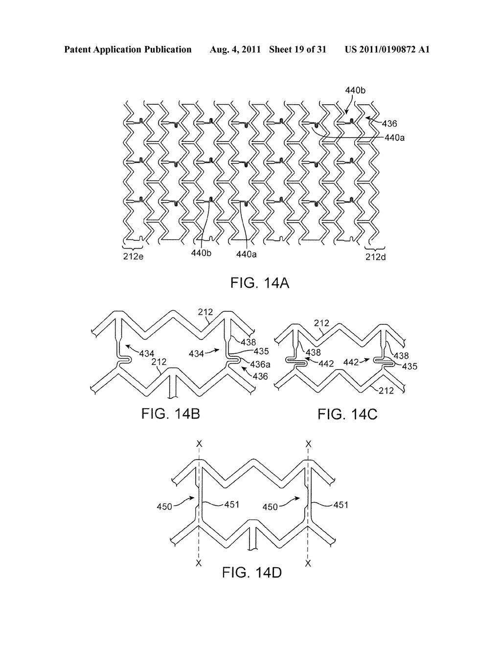 Crush Recoverable Polymer Scaffolds Having a Low Crossing Profile - diagram, schematic, and image 20