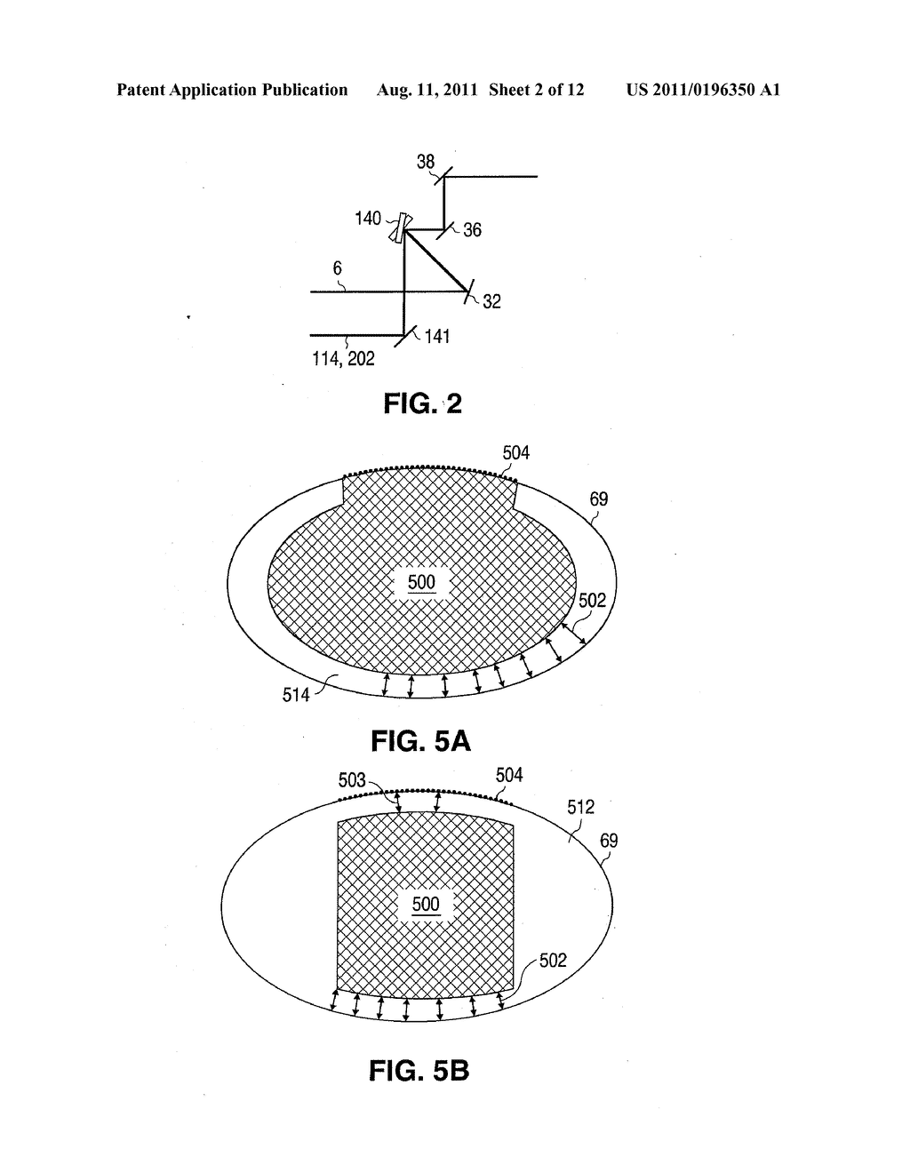 SYSTEM AND METHOD FOR PLASMA-MEDIATED MODIFICATION OF TISSUE - diagram, schematic, and image 03
