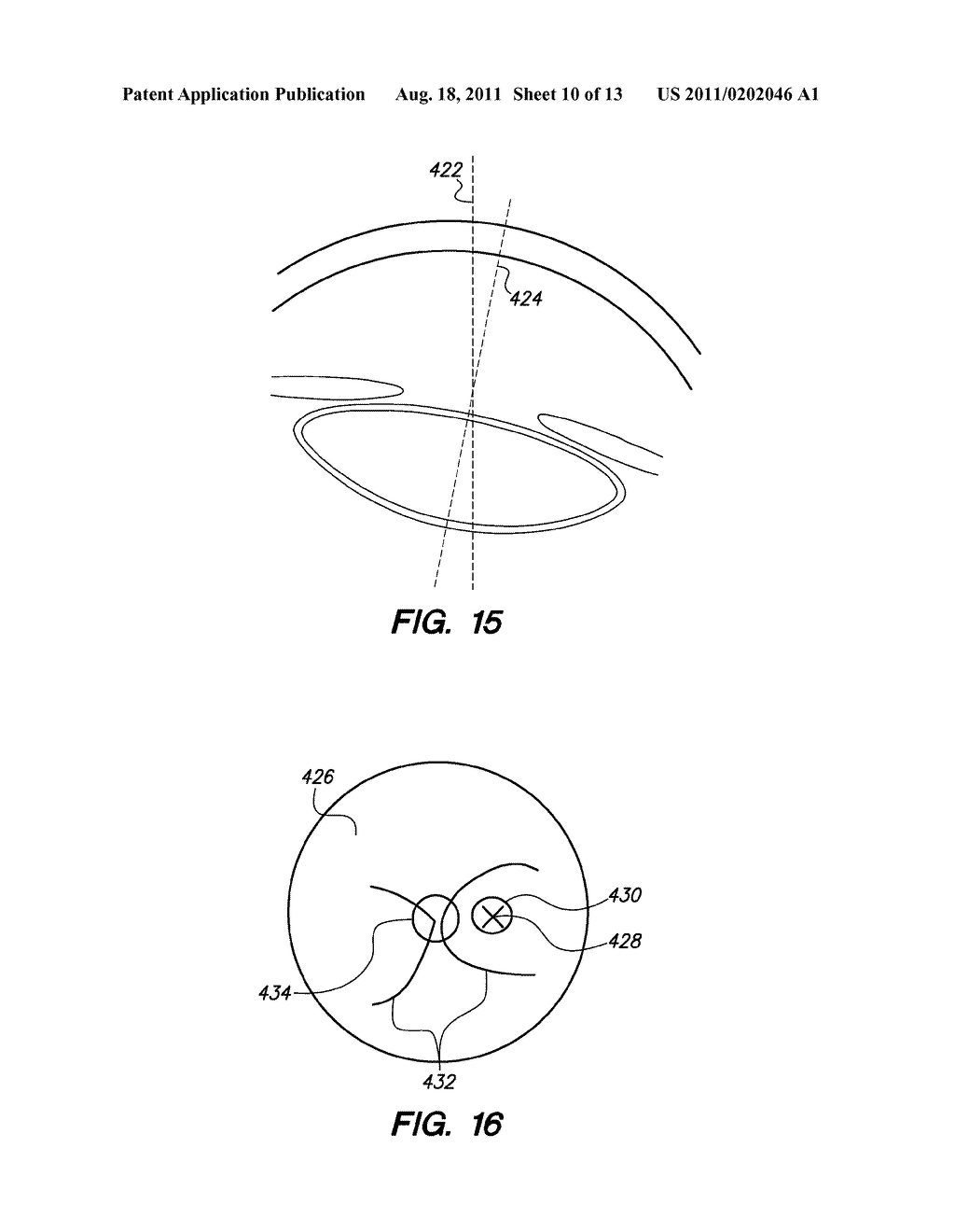 METHOD AND APPARATUS FOR AUTOMATED PLACEMENT OF SCANNED LASER     CAPSULORHEXIS INCISIONS - diagram, schematic, and image 11