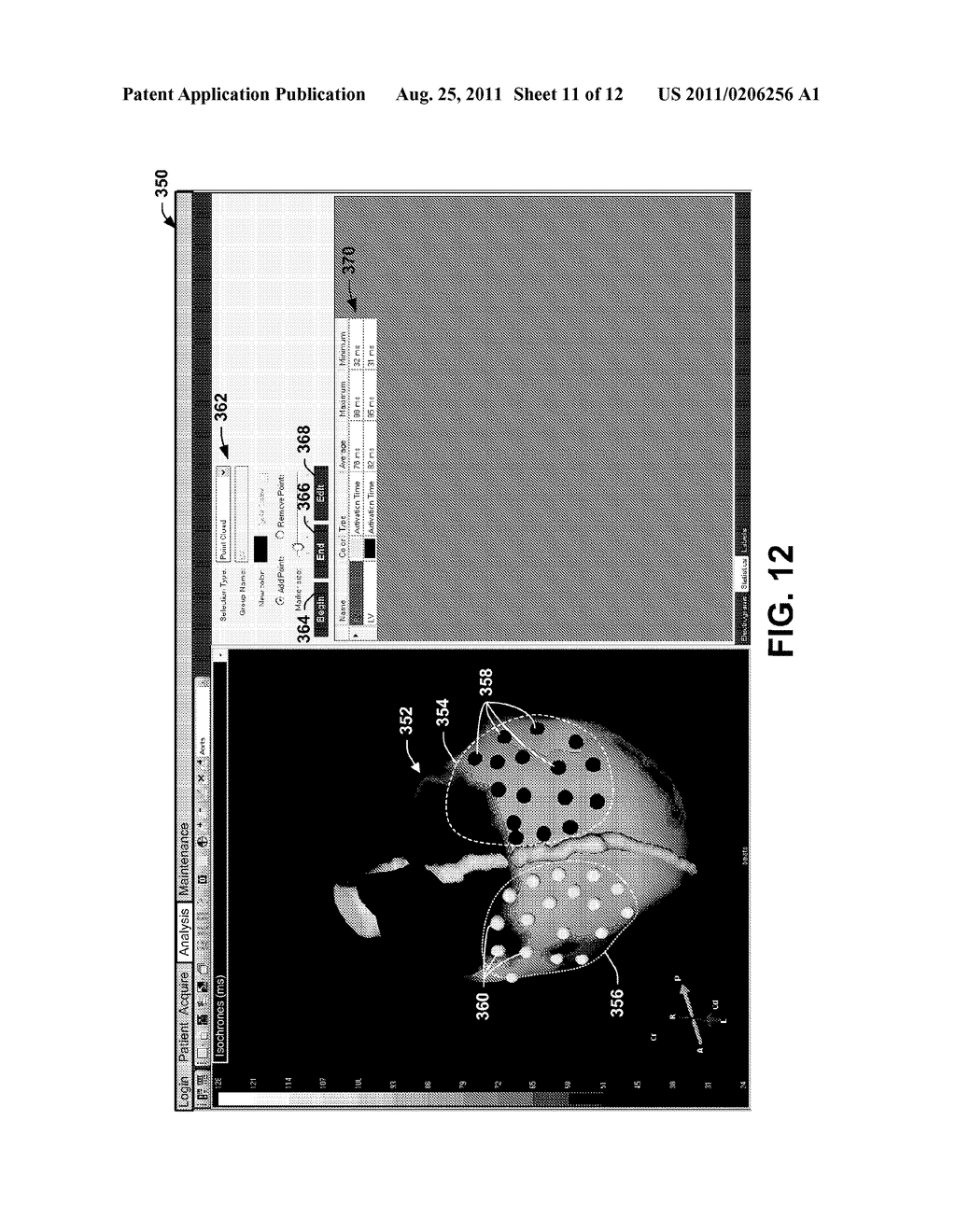 VISUALIZATION OF PHYSIOLOGICAL DATA FOR VIRTUAL ELECTRODES - diagram, schematic, and image 12
