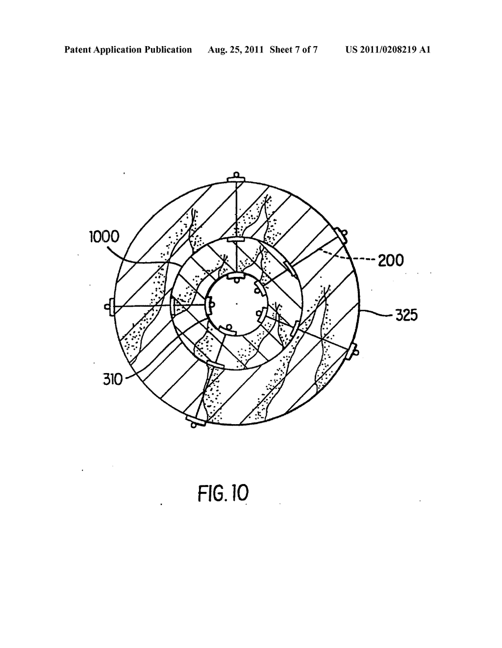 Method And Apparatus For Endoscopic Repair Of The Lower Esophageal