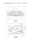 METHODS OF PREPARING CUSTOMIZED MOUTHPIECES FOR ENHANCING ATHLETIC     PERFORMANCE diagram and image