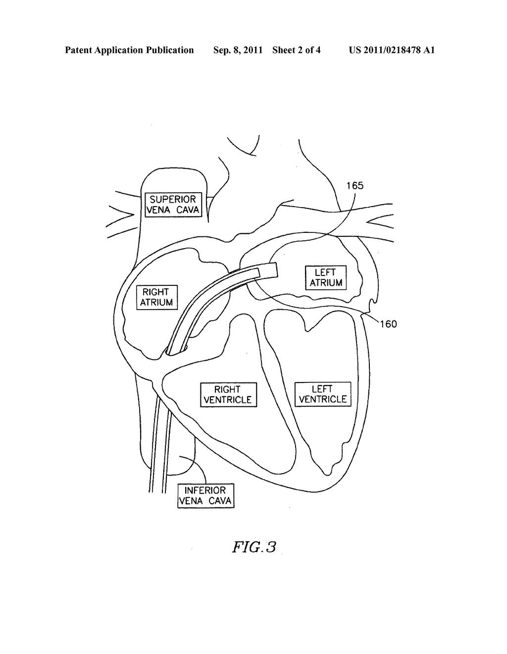Free Coloring Pages Of Human Circulatory System Circulatory System Coloring Page