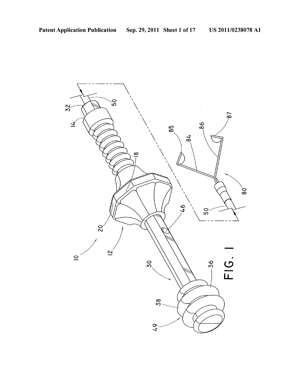 DEVICE AND METHOD FOR POSITIONING AN IMPLANTED STRUCTURE TO FACILITATE     REMOVAL - diagram, schematic, and image 02