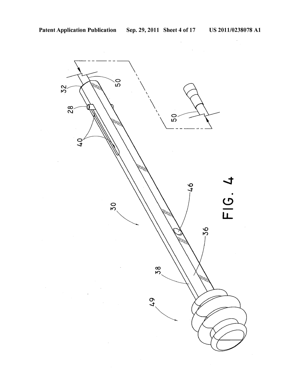 DEVICE AND METHOD FOR POSITIONING AN IMPLANTED STRUCTURE TO FACILITATE     REMOVAL - diagram, schematic, and image 05
