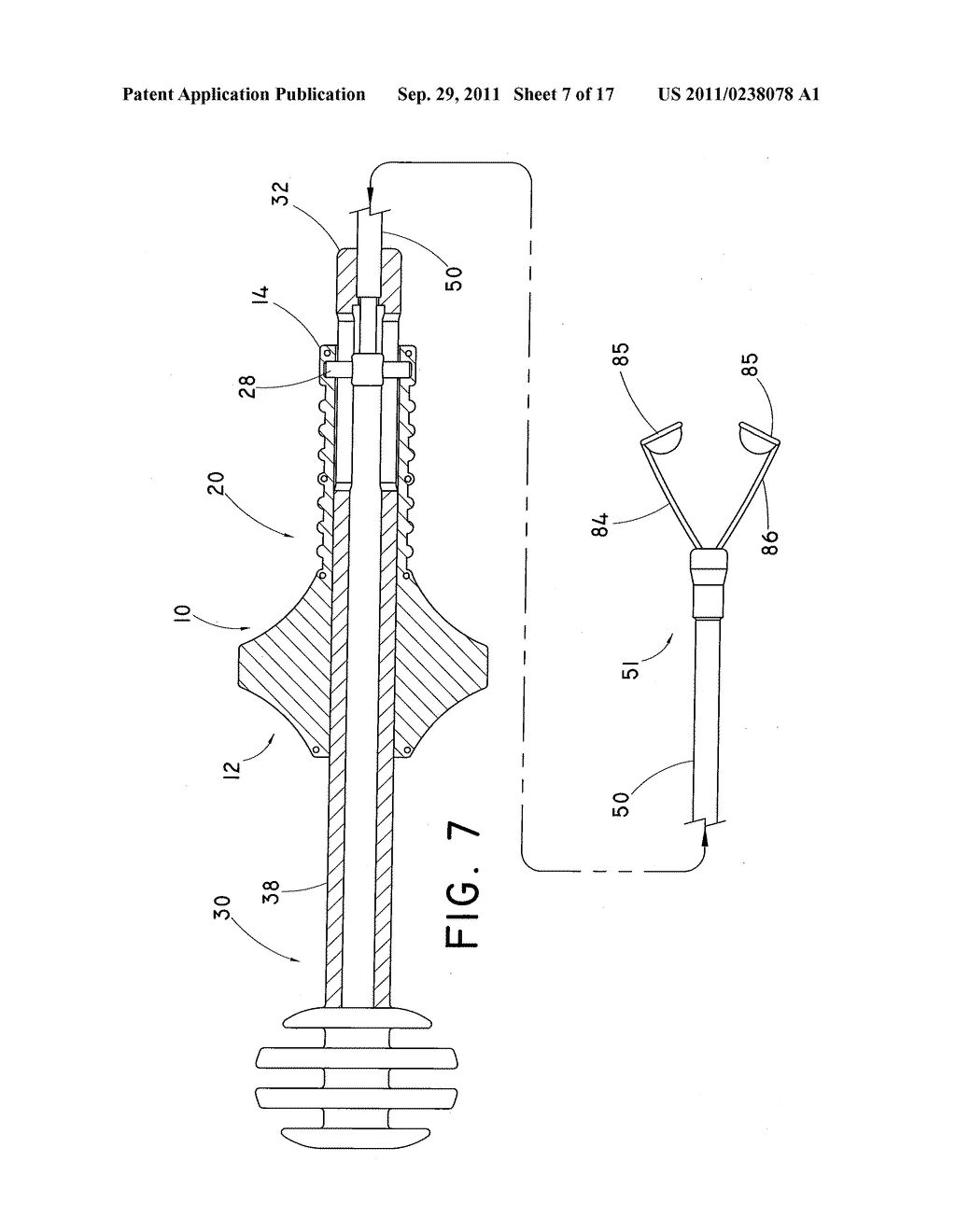 DEVICE AND METHOD FOR POSITIONING AN IMPLANTED STRUCTURE TO FACILITATE     REMOVAL - diagram, schematic, and image 08