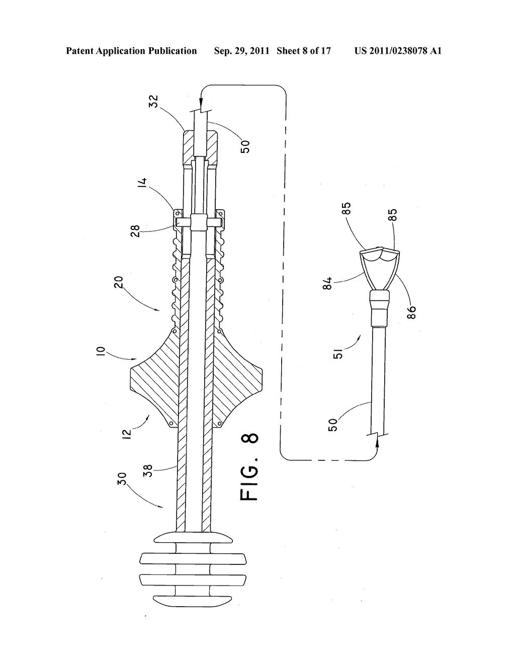 DEVICE AND METHOD FOR POSITIONING AN IMPLANTED STRUCTURE TO FACILITATE     REMOVAL - diagram, schematic, and image 09