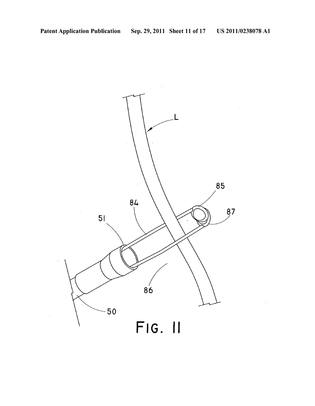 DEVICE AND METHOD FOR POSITIONING AN IMPLANTED STRUCTURE TO FACILITATE     REMOVAL - diagram, schematic, and image 12