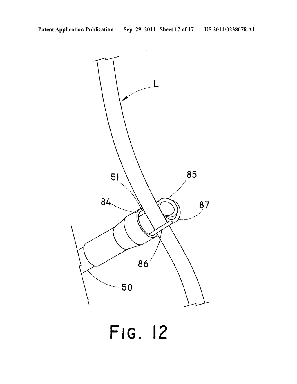 DEVICE AND METHOD FOR POSITIONING AN IMPLANTED STRUCTURE TO FACILITATE     REMOVAL - diagram, schematic, and image 13