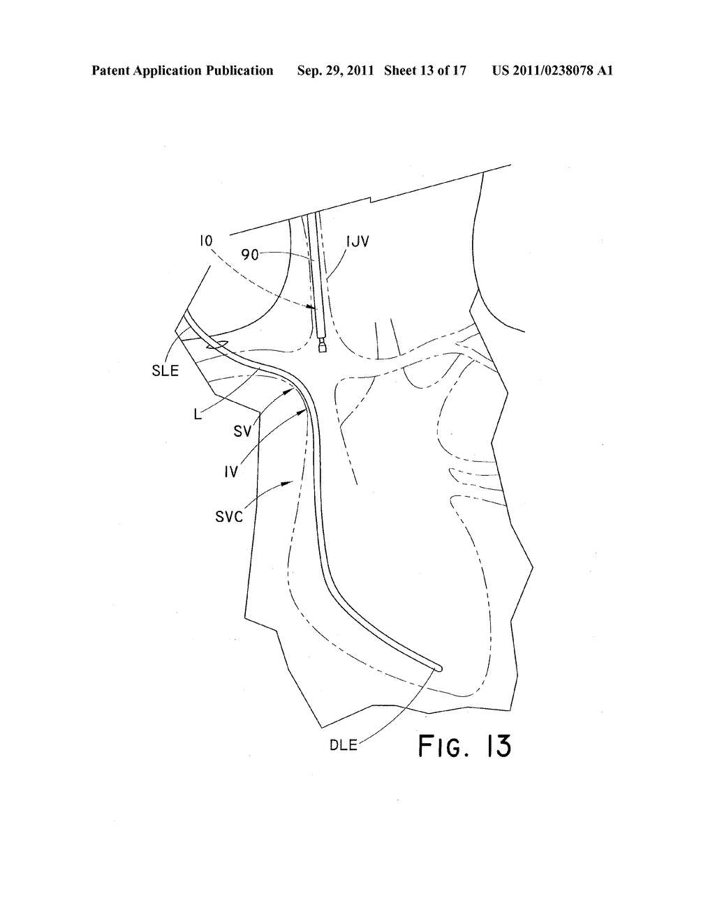 DEVICE AND METHOD FOR POSITIONING AN IMPLANTED STRUCTURE TO FACILITATE     REMOVAL - diagram, schematic, and image 14
